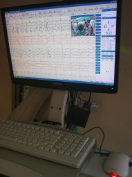 EEG monitor ... reading Alex's brainwaves!